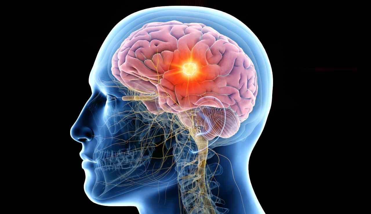 Ecco 7 abitudini che rovinano il tuo cervello