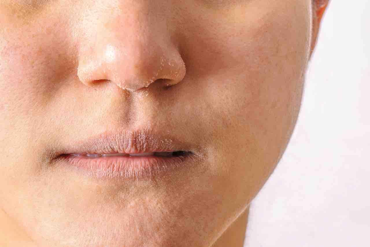 Pelle secca: la skincare perfetta, detersione, trattamenti e makeup