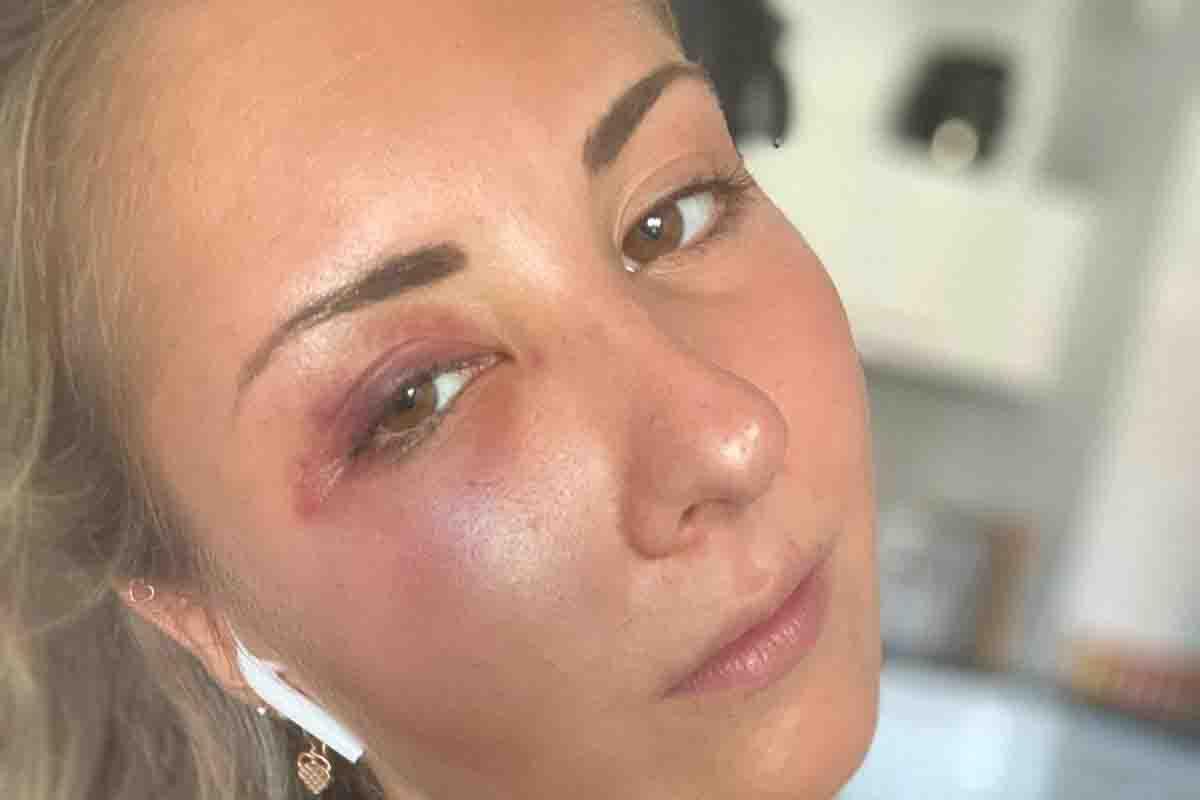 Ragazza di 22 anni picchiata per strada perché indossava la gonna