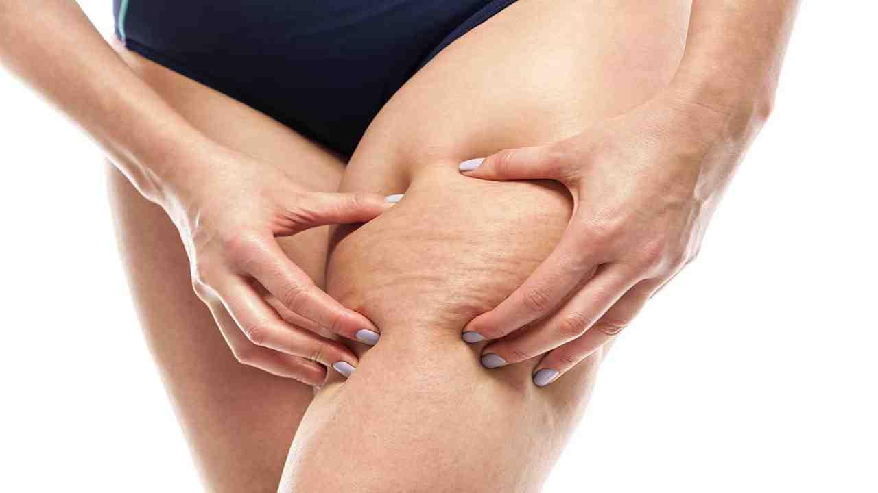 Cellulite, le diete estreme non funzionano: ecco l'abitudine (comunissima) da evitare